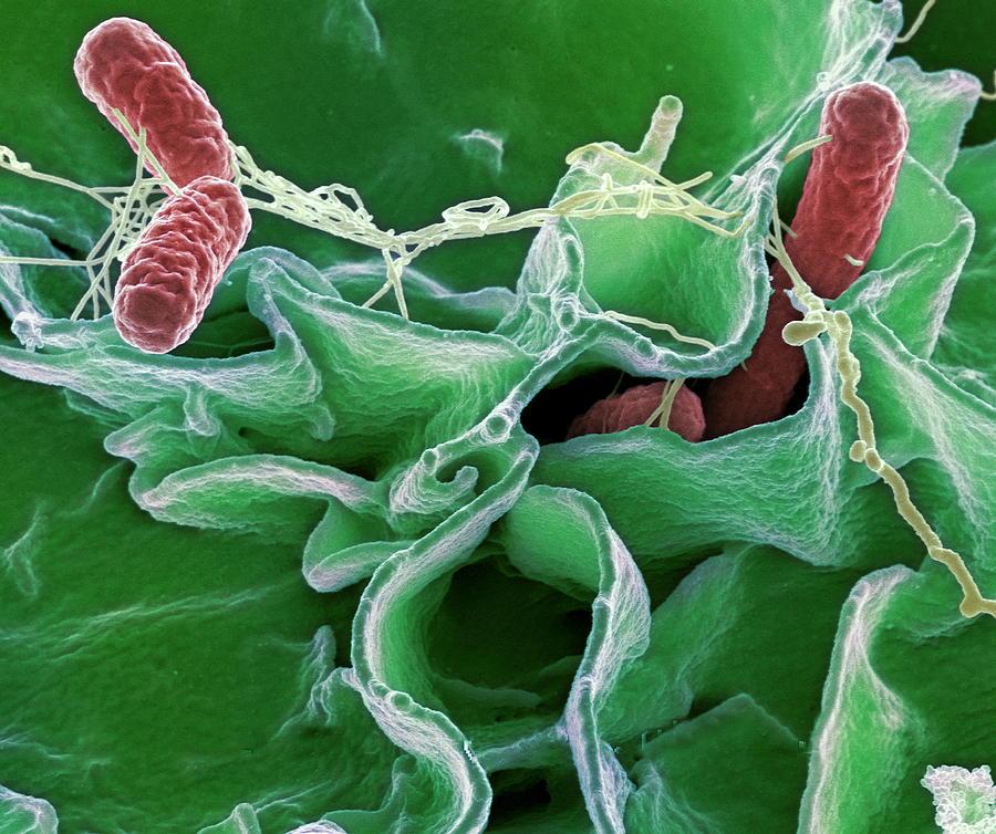 1-salmonella-bacteria-sem-niaidcdc