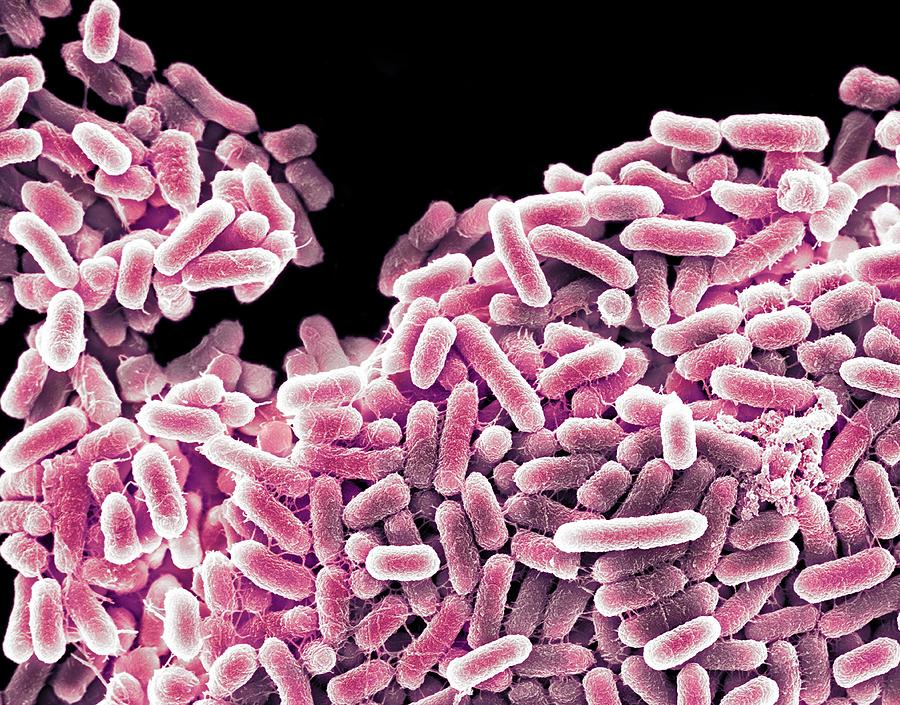 2-salmonella-bacteria-sem-