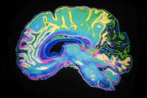 Muerte-cerebral-2